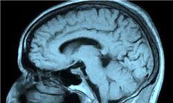 نشانههای ابتلا به تومورهای مغزی