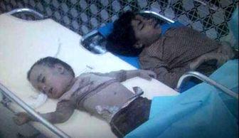 آمار یونیسف از قتل عام کودکان یمنی