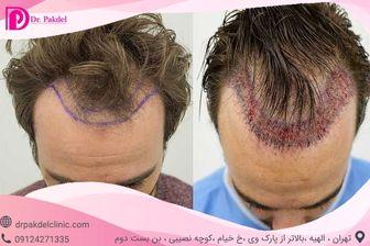 کاشت مو چگونه انجام میشود؟ انواع روشها، عوارض