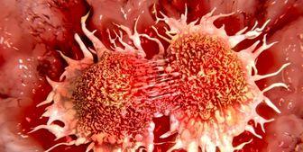 عادتهای اشتباهی که عامل سرطان میشوند