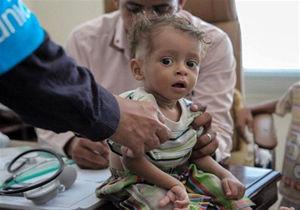 نگاهی به تراژدی یمن