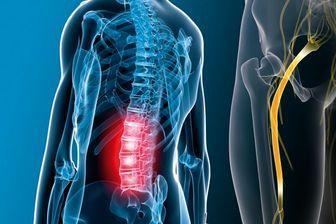 راه های درمان «درد سیاتیک»