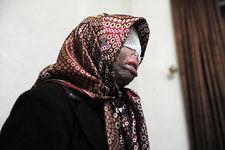 همسرکشی با اسید به خاطر سوء ظن