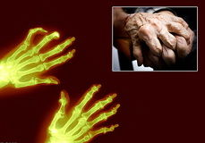 تفاهم نامه همکاری انجمن ارتوپدی با پزشکی قانونی