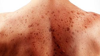 چگونه از سرطان پوست جلوگیری کنید